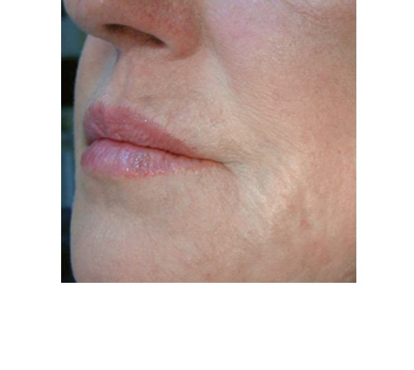 Lips after Profhilo treatment