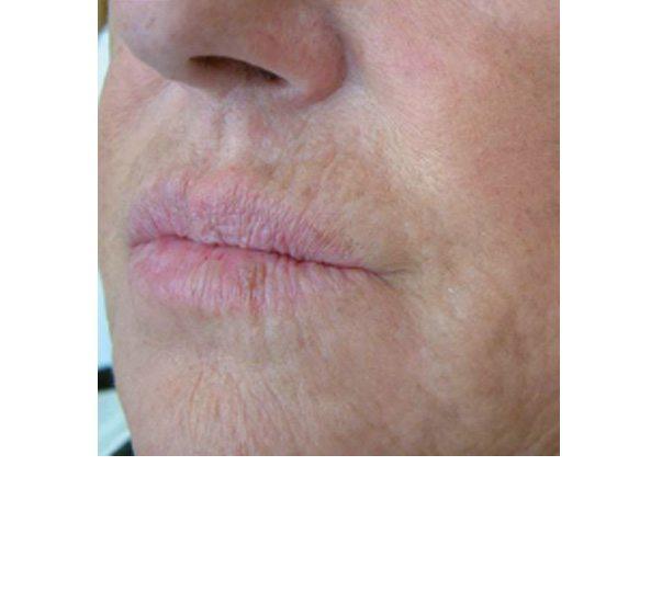 Lips before Profhilo treatment