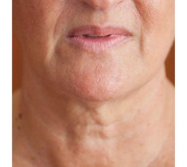 Profhilo® Treatment | Profhilo London and Bucks | Cosmetic Skin Clinic