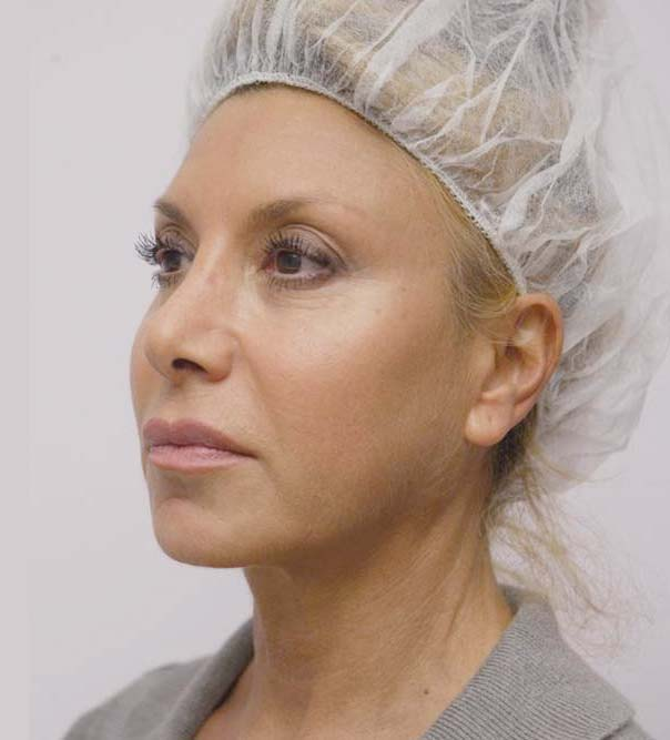 A lady who has had Silhouette Soft Thread lifts to tighten and lift the jaw line and the mid-face