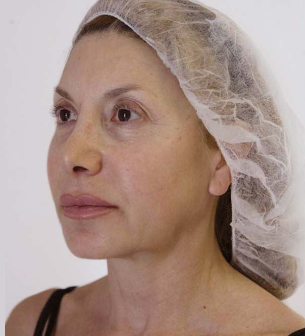 A lady before treatment with thread lifts