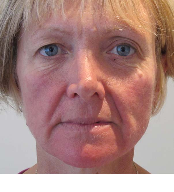 A lady's face before having collagen stimulation and thread lifting