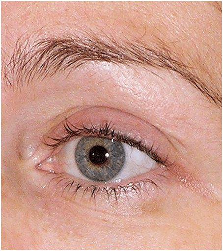 Thermage flx eyes after