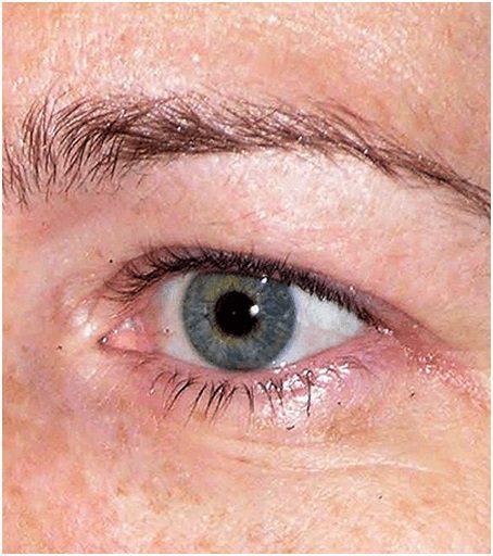 Thermage flx eyes before