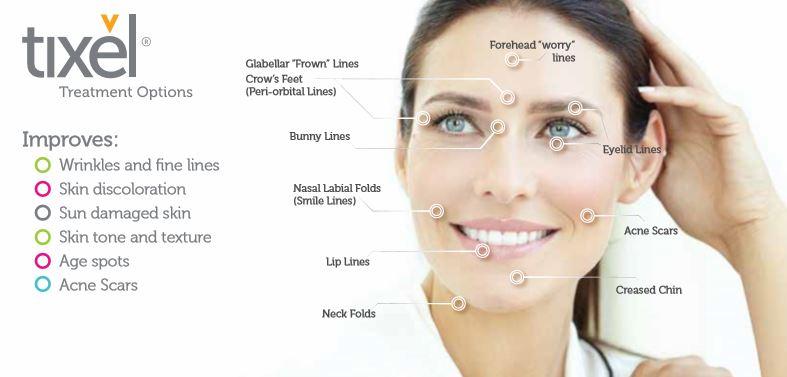 Tixel   The Cosmetic Skin Clinic