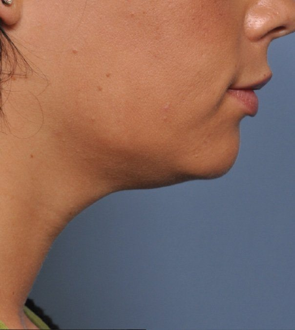 After Ultherapy treatment to jawline and neck