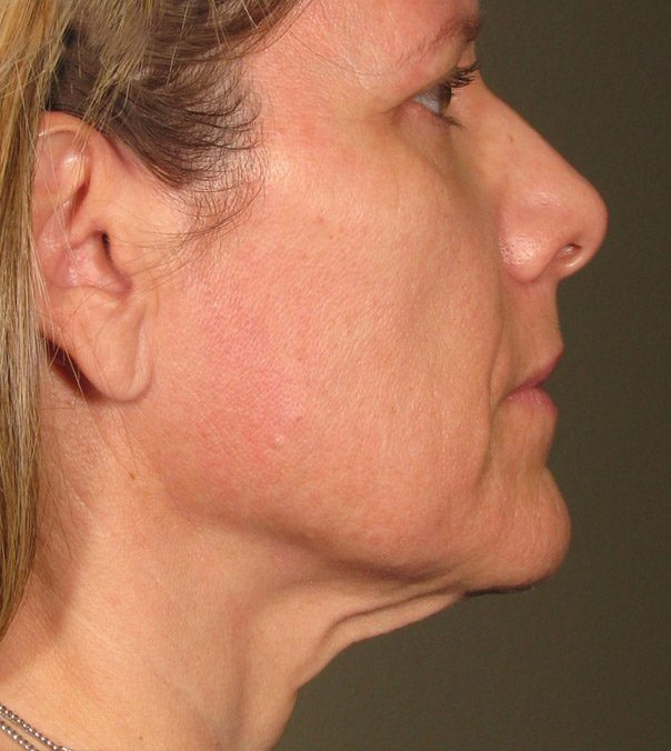 After Ultherapy Treatment Chin & Jawline