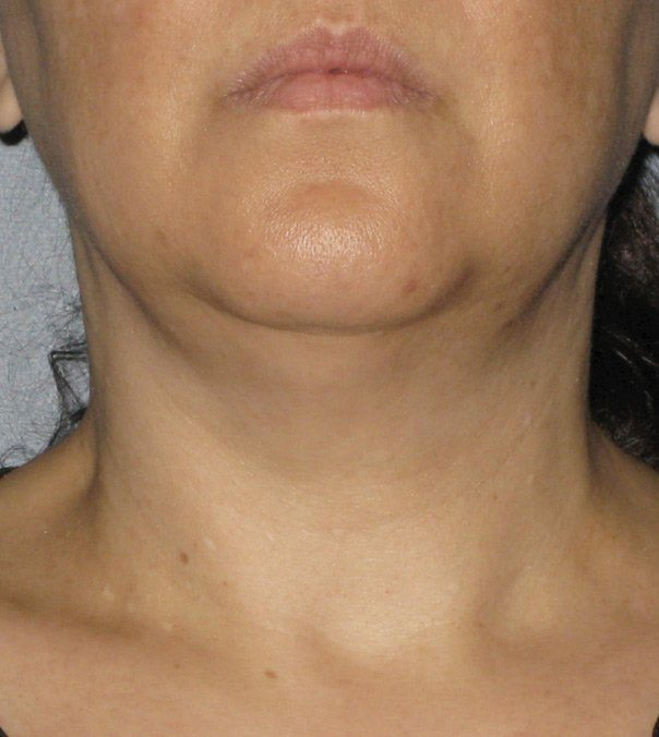 After Ultherapy treatment to chin
