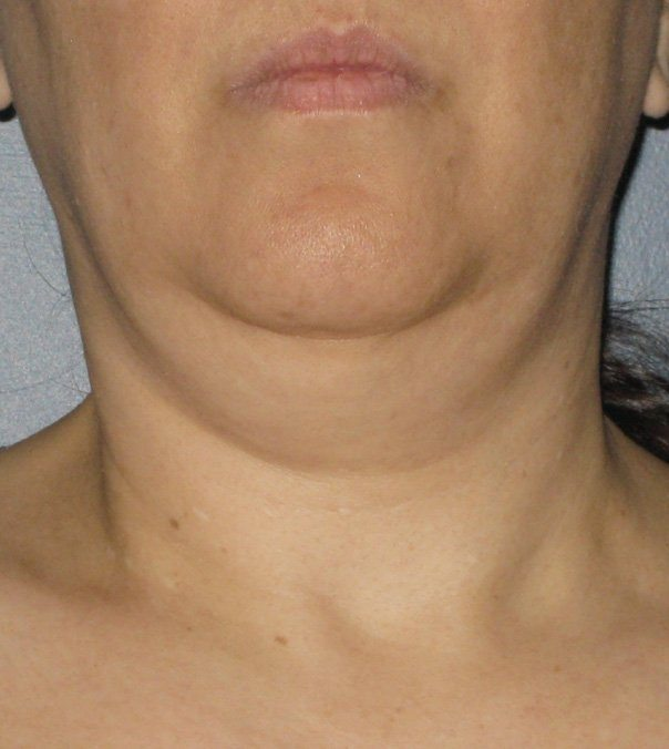 Before Ultherapy treatment to chin