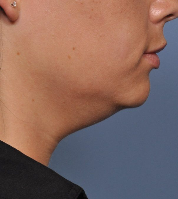 Before Ultherapy treatment to jawline and neck