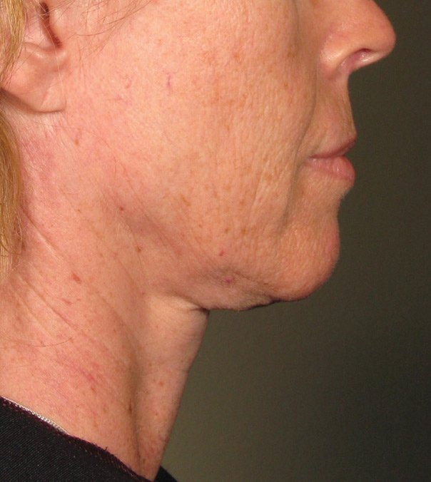 Before Ultherapy treatment to neck