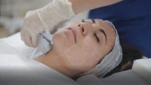 ultherapy, ultherapy treatment, ultherapy procedure