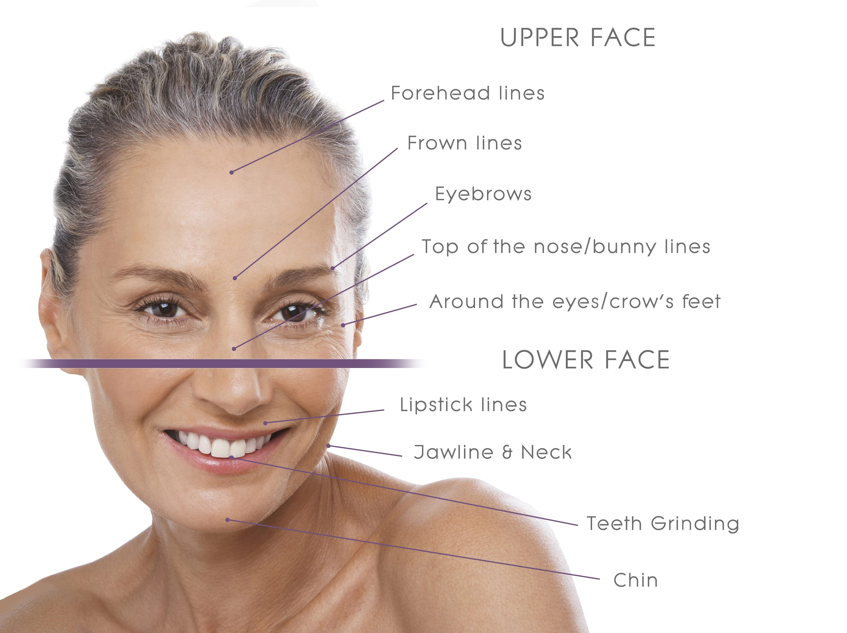 the most popular area of use for botox is the face by relaxing different facial muscles from the forehead to the neck wrinkles can be minimised