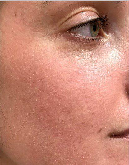 acne scarring skin pigmentation laser skin resurfacing after