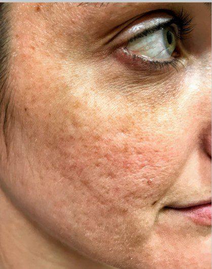 acne scarring skin pigmentation laser skin resurfacing before