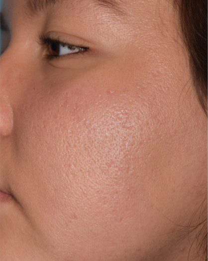acne scars large pores treatment with laser skin resurfacing after