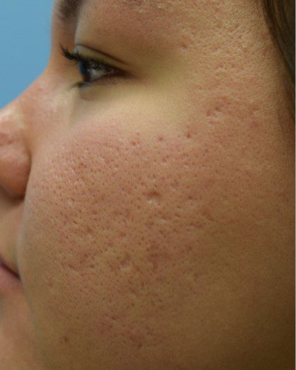 acne scars large pores treatment with laser skin resurfacing before