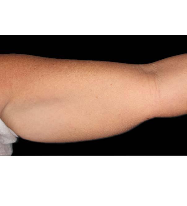 Upper arm before CoolSculpting treatment
