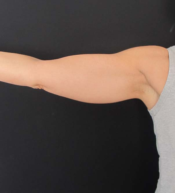 Flabby upper arm before arm lift treatment