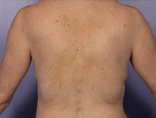 non surgical back fat removal after