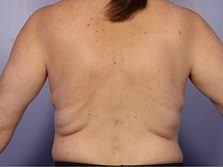 non surgical back fat removal before