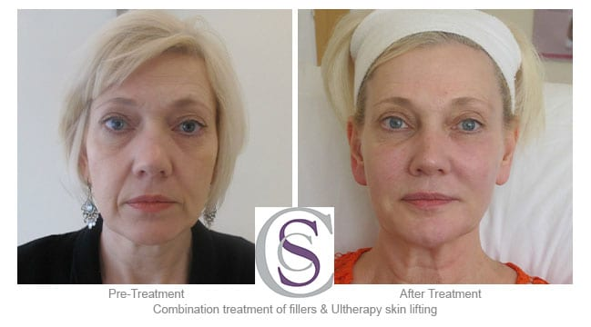 ultherapy skin lifting before and after