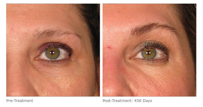 ultherapy brow lift before and after