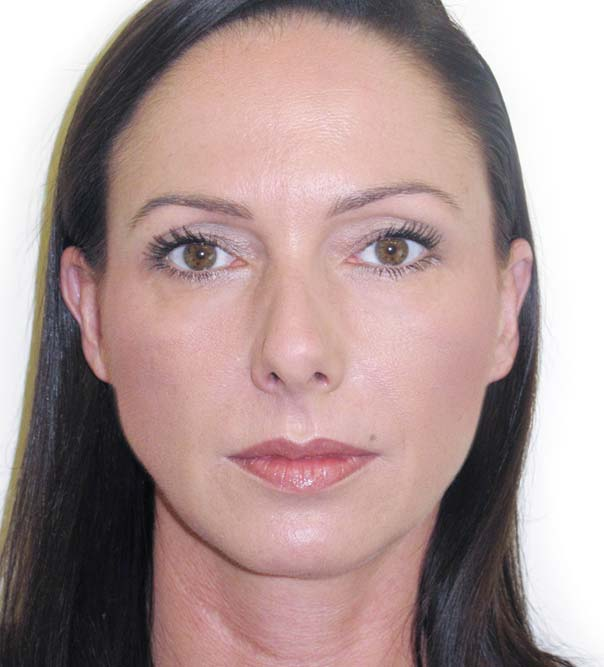 A lady who has had Restylane to the glabella (combined with Botox), lower face and lips