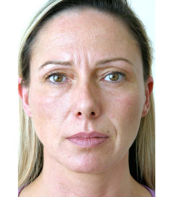 A lady before having Restylane and Botox treatments