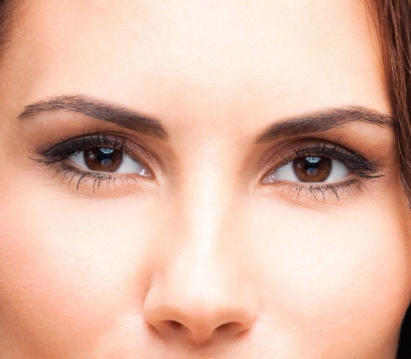 brow lift, brow lift treatment