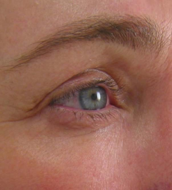 A close up of an eye following Ultherapy skin lifting and tightening