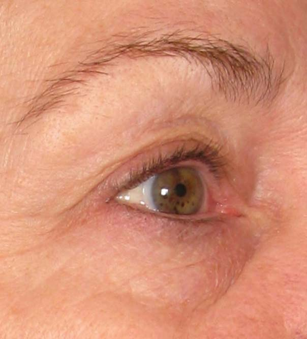 A close up of an eye following a brow lift