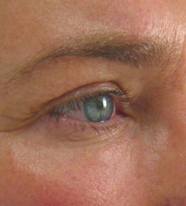 A close up of an eye before a brow lift
