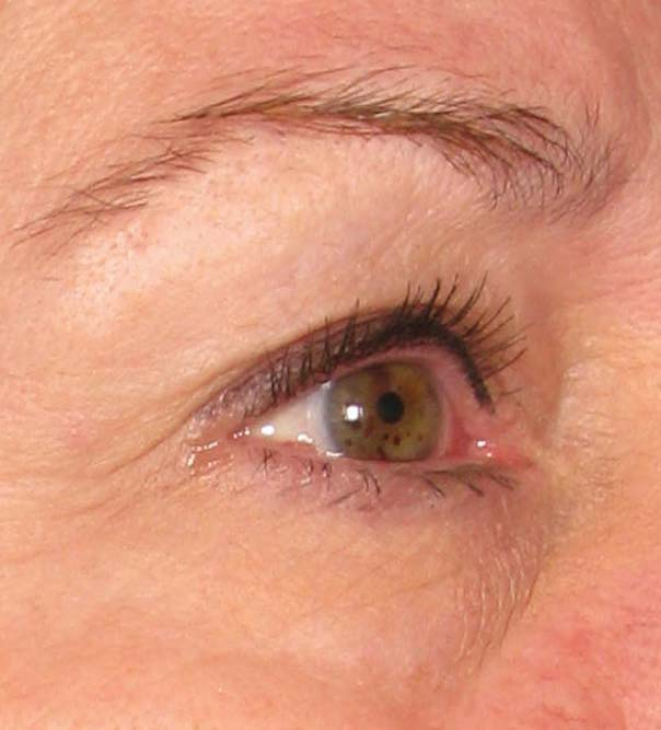 A close up of an eye before Ultherapy treatment