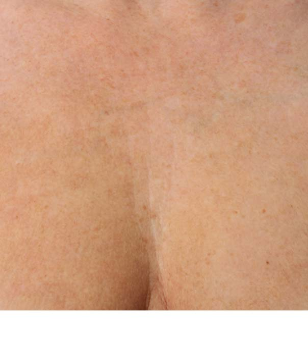 A chest close up after micro injections of Restylane Skinboosters