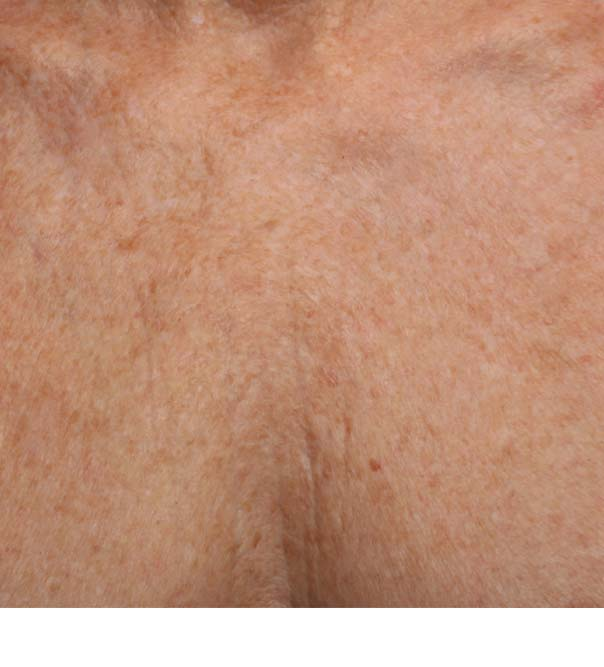 Chest skin after micro injections to smooth crepey skin