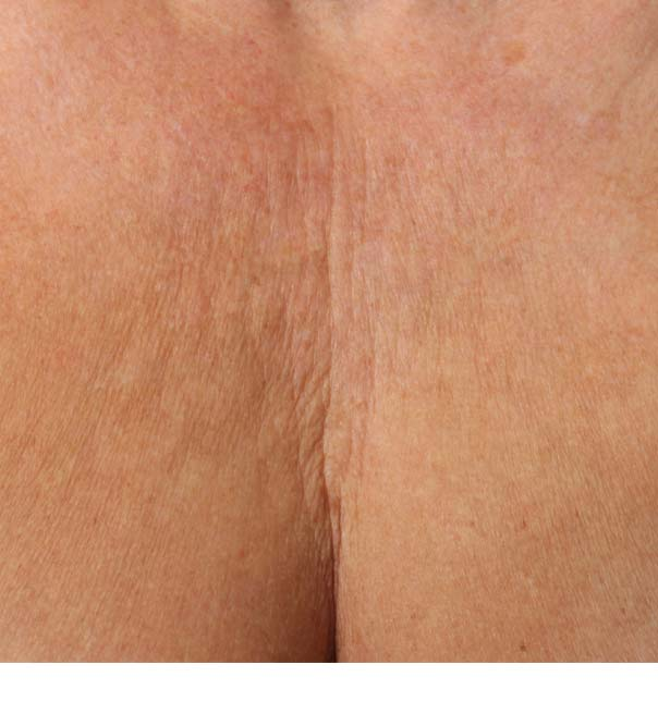 A close up of a crepey decolletage