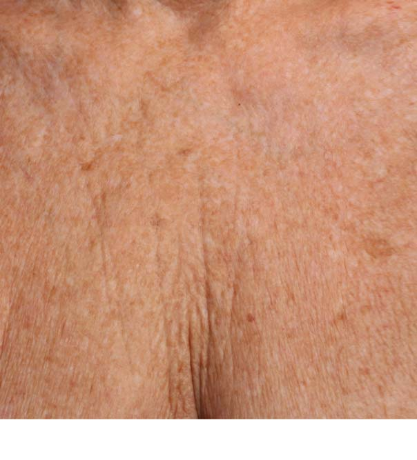 A close up of crepey chest skin before cosmetic treatment