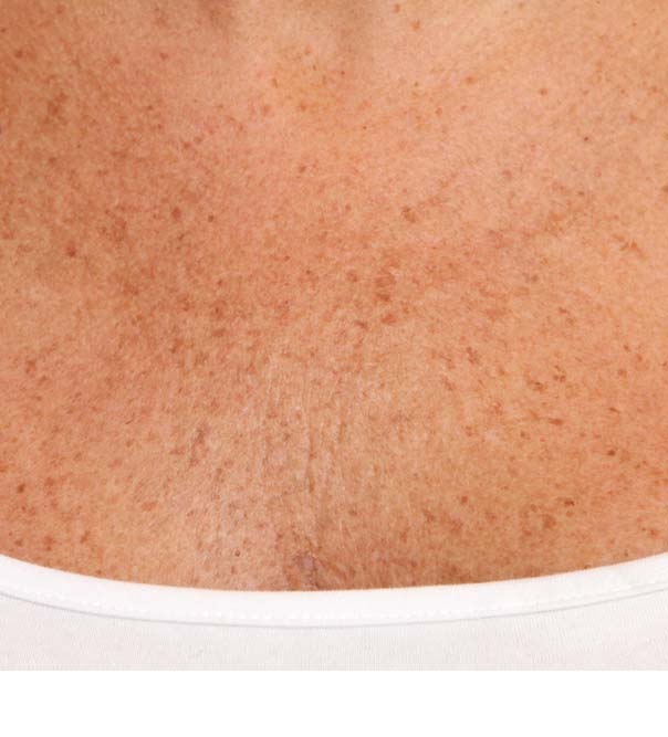 Smooth and hydrated chest skin after treatment with micro injections of Restylane