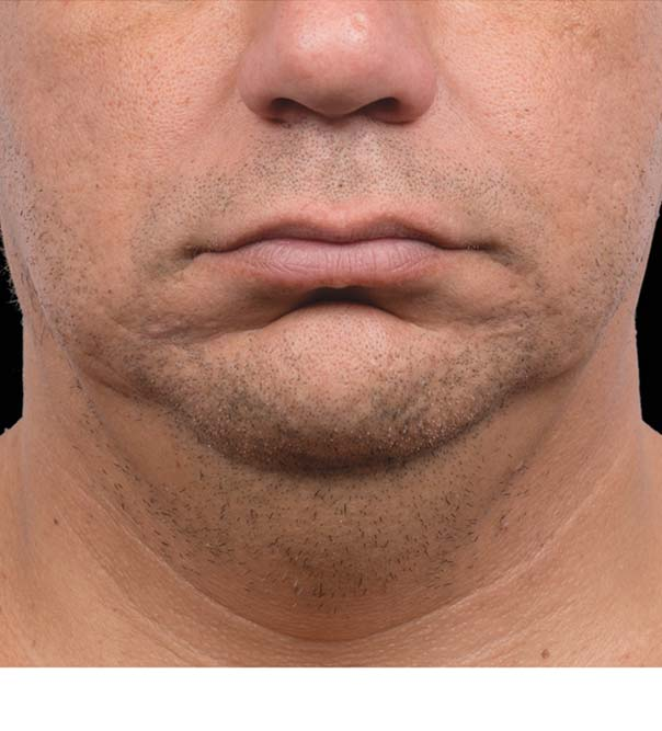 A man's chin and neck after CoolMini treatment