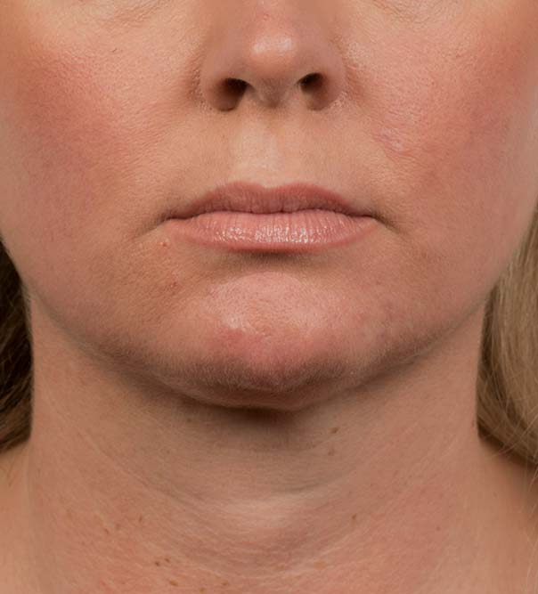 A lady's chin and neck after CoolMini treatment