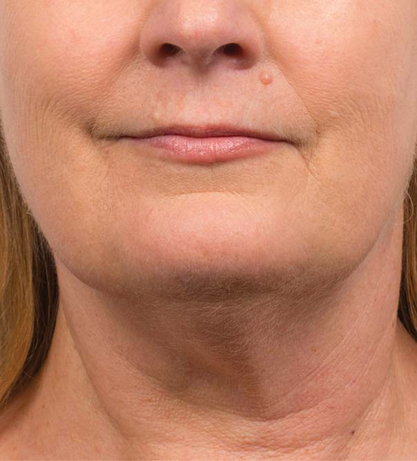 A lady's double chin reduced by the use of CoolMini