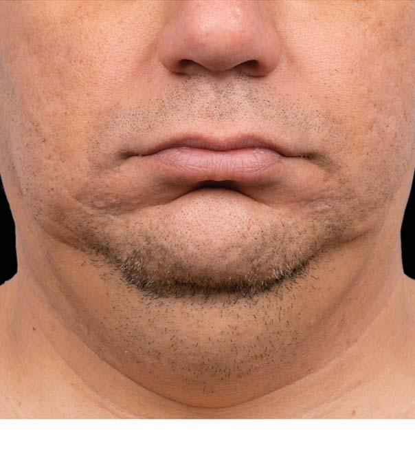 A man's chin and neck before treatment