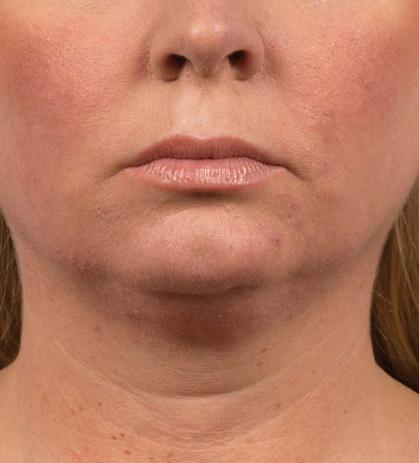 A lady's chin and neck before CoolMini treatment