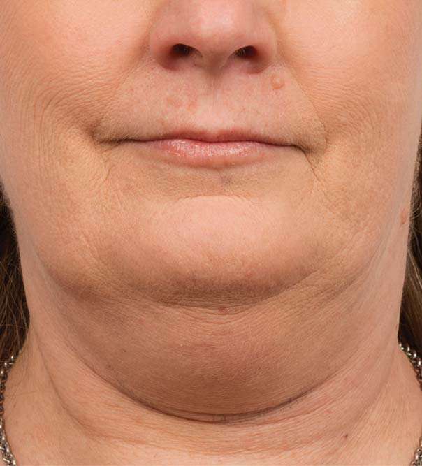 A lady's double chin before CoolMini treatment