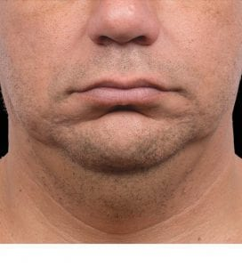CoolSculpting double chin men after