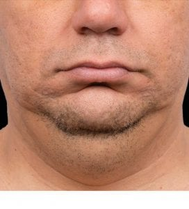 CoolSculpting double chin men before