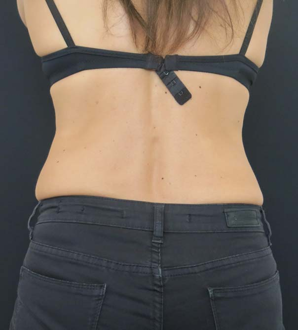 A lady's upper body after fat freezing of the 'muffin top'