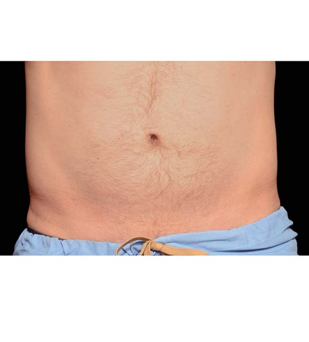 A man's flat stomach following fat freezing to the abdomen