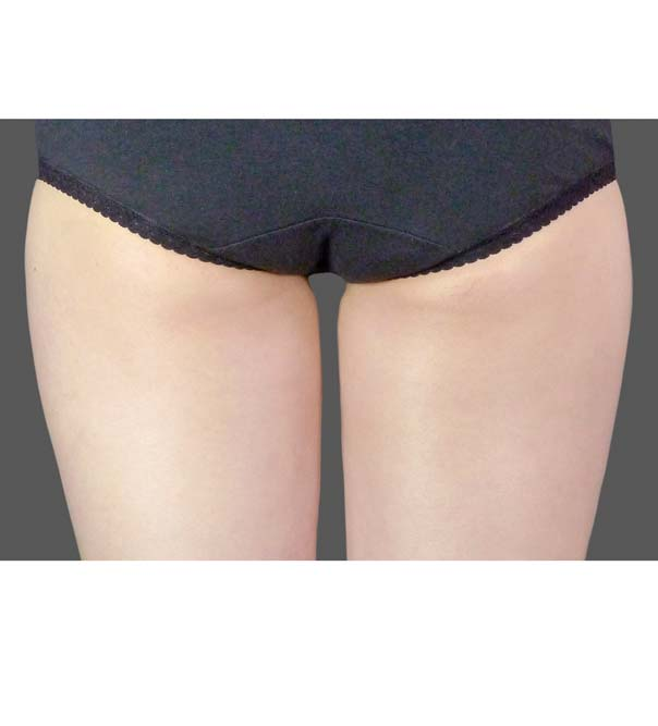 A lady's inner thighs after CoolSculpting treatment